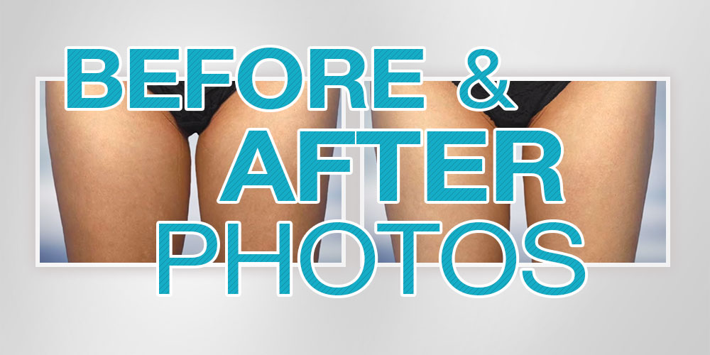coolsculpting before & after photos